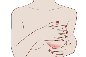 Radiodermatitis increasingly common in female breast cancer patients