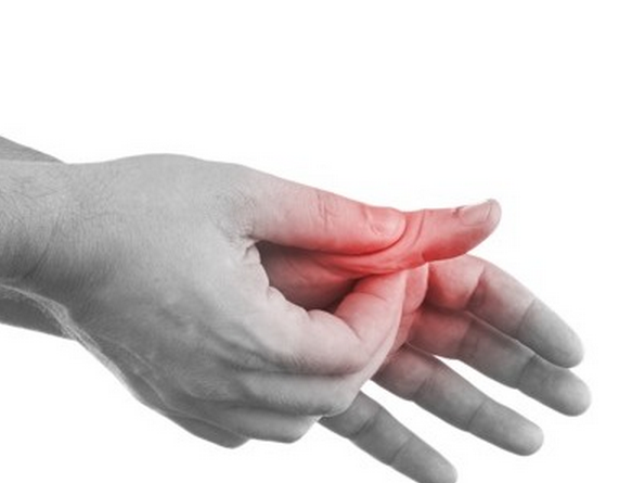 sprained thumb joint