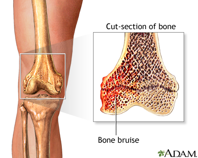 bone bruise syndrom