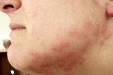 Pictures of Bed Bug Bites On Skin