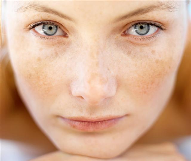 Facial sun spots