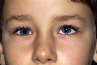 Different Eye Sizes Causes Amp Treatments Md Health Com