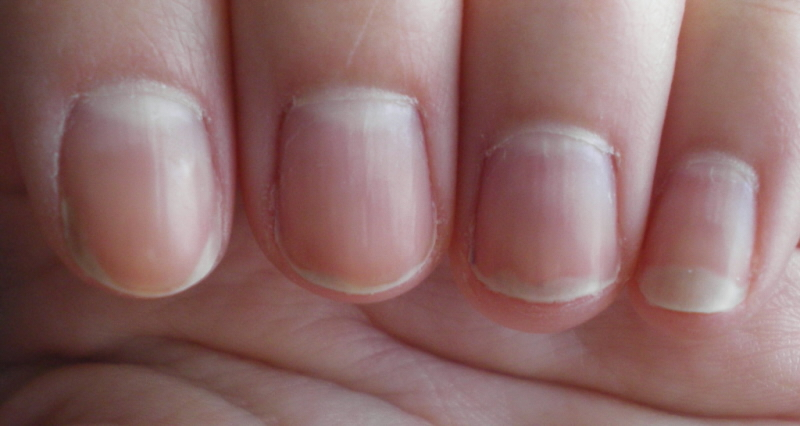 Having Clean Healthy Fingernails Can Indicate Conditions When Your Are Very Pale Or Even White That Could Mean There Is A