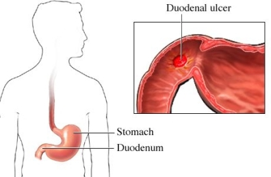 duodenal ulcer | md-health, Human Body