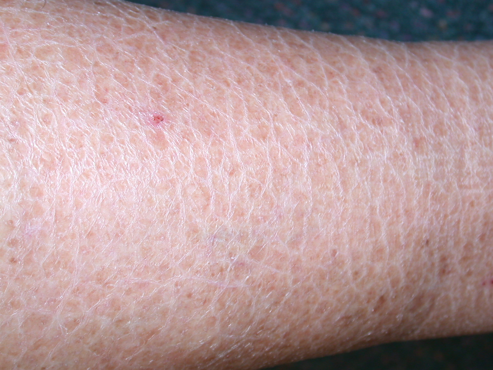 what causes dry scaly skin