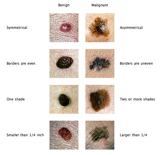 Moles on genital area meaning