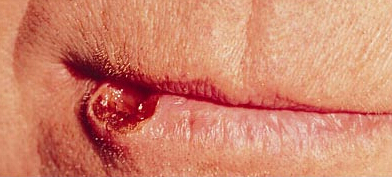Picture Of Melanoma In Black Dogs Lip