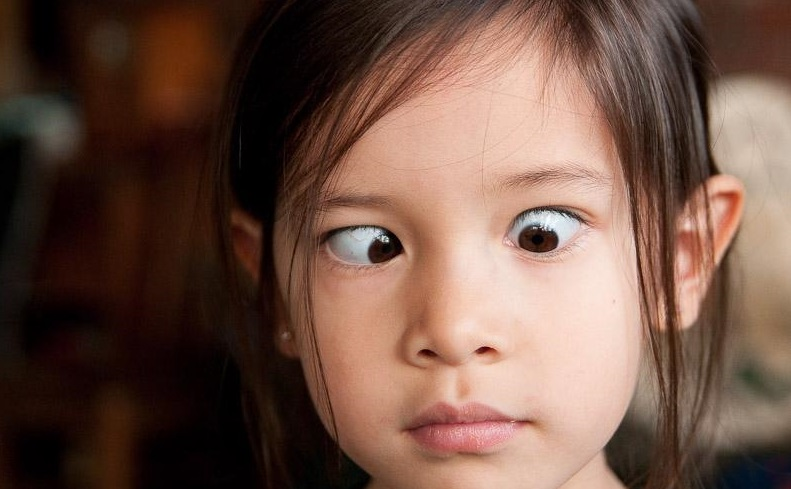 Cross Eyed Funny Looking Funny Memes About: Crossed Eyes: Causes, Types, And Treatment