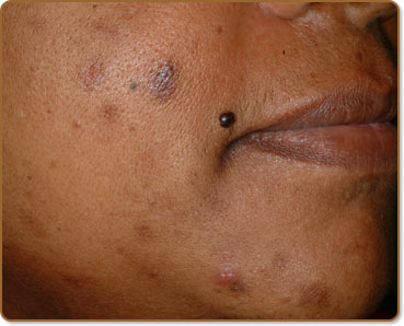 Post Inflammatory Hyperpigmentation Causes and Treatments ...