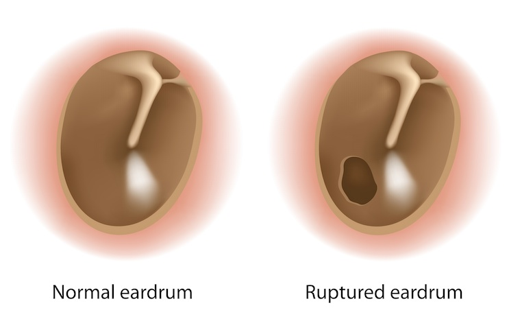 perforated eardrum | md-health, Skeleton