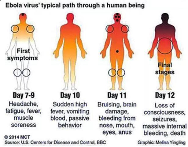 ebola virus disease The ebola virus causes an acute, serious illness which is often fatal if untreated ebola virus disease (evd) first appeared in 1976 in 2 simultaneous outbreaks, one in what is now, nzara, south sudan, and the other in yambuku, democratic republic of congo the latter occurred in a village near the.