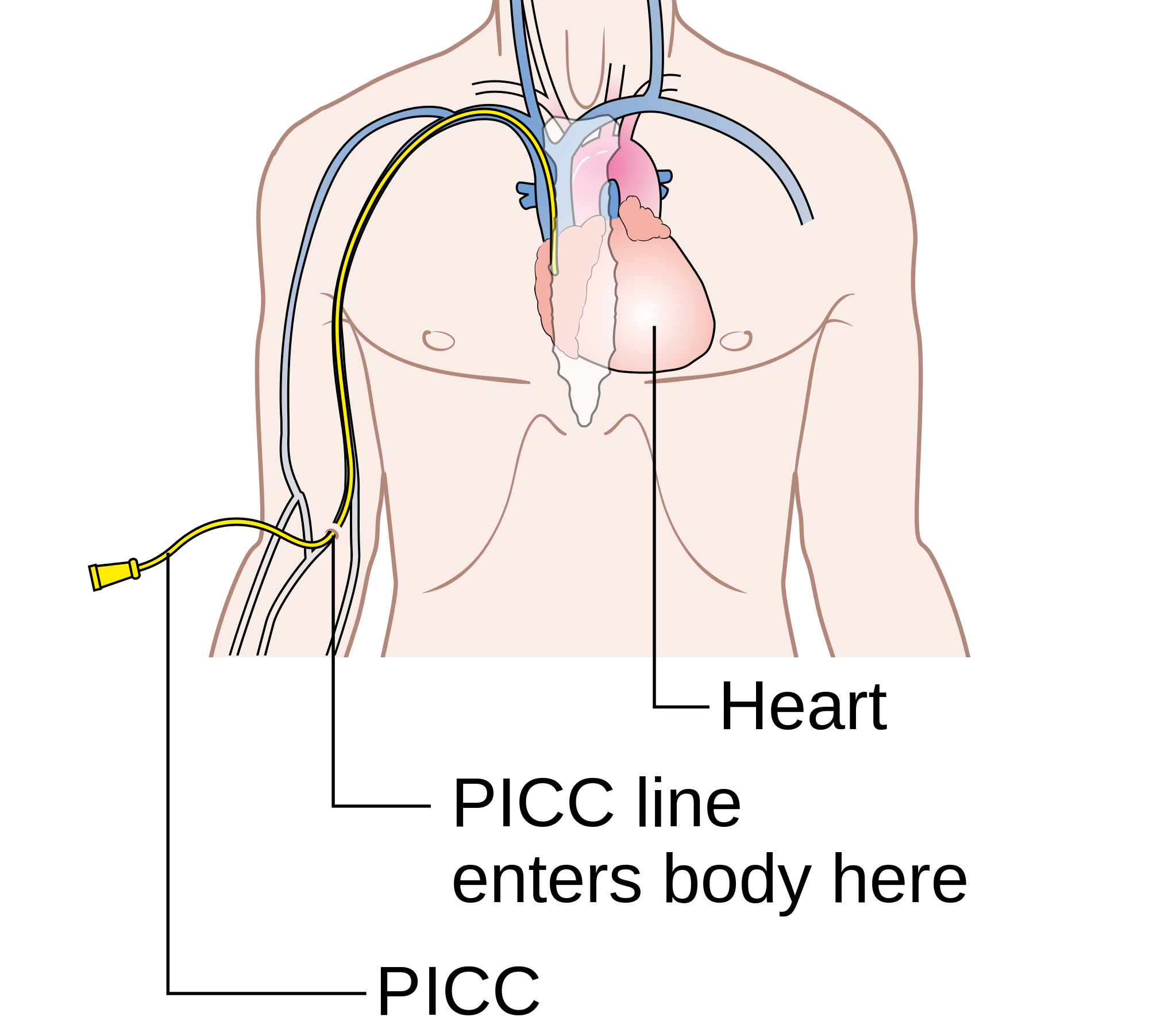 an essay on health care and the peripherally inserted central catheter picc Before you get your peripherally inserted central catheter - 2 -  health care provider if you have any questions about this document, your condition or your.