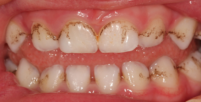Black Stains on the Teeth: Major Causes and Best Solutions ...