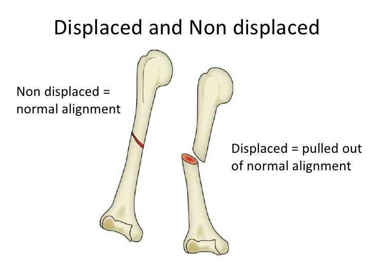 Non Displaced Bone Fracture What Is It And How To Treat It Md