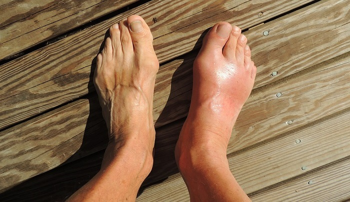 How to Deal With the Swelling of the Top of Your Foot | MD