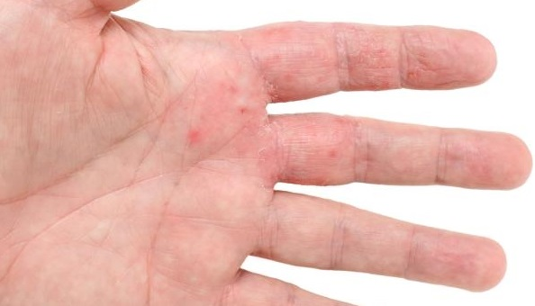 Image result for dry skin caused by eczema