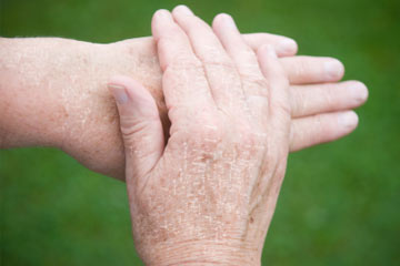 dry skin on hands treatment