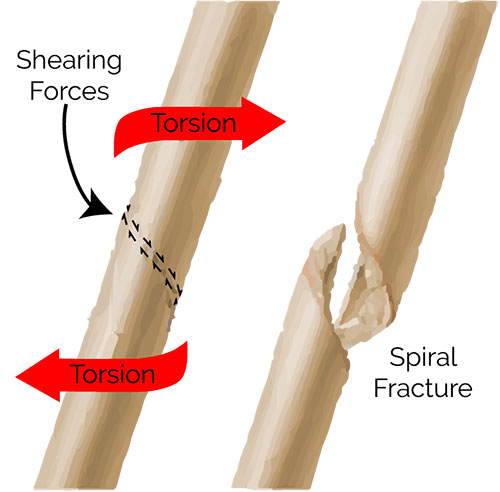 spiral fracture of humerus: signs, treatments & prevention | md, Human Body