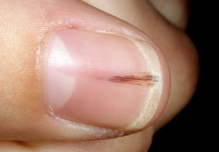Small Vertical Red Lines In Addition To Black Streaks Fingernails