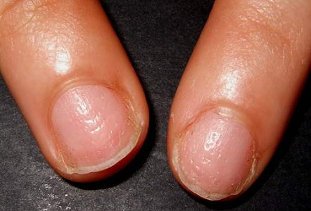 Rippled Or Pitted Nails Indicate Tiny Holes Indentations In The Nail Bed Which May Be Due To Psoriasis It Can Also Psoriatic Arthritis
