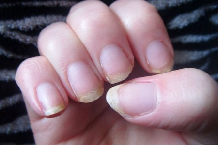 If Your Nails Are Brittle Splitting Peeling Or Easily Cracked And Have Vertical Ridges On The Surface You May An Underactive Thyroid Gland