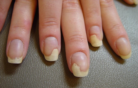 If The Nail Begins To Separate From Bed This Is Called Onycholysis And It Typically Starts On Fifth Or Fourth Fingernails