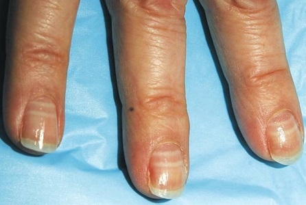 Meeslines Are White Bands That Run Parallel Across The Nails Horizontally Just Like Ridges Mees Lines Can Affect One Or More Nail