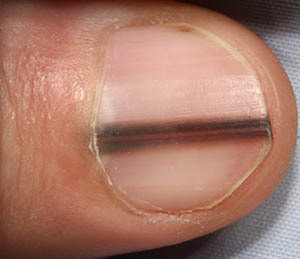 This Deadly Skin Cancer Can Include Subungual Melanoma Which Is Characterized By Black Streaks In Nails It Also Lead To Dark Pigmentation Of The