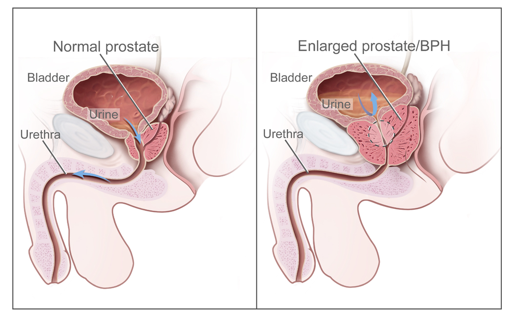 How To Treat Enlarged Prostate Gland Effectively Md Health