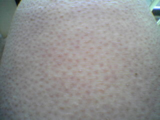 Causes of Keratosis Pilaris and Treatments | MD-Health com