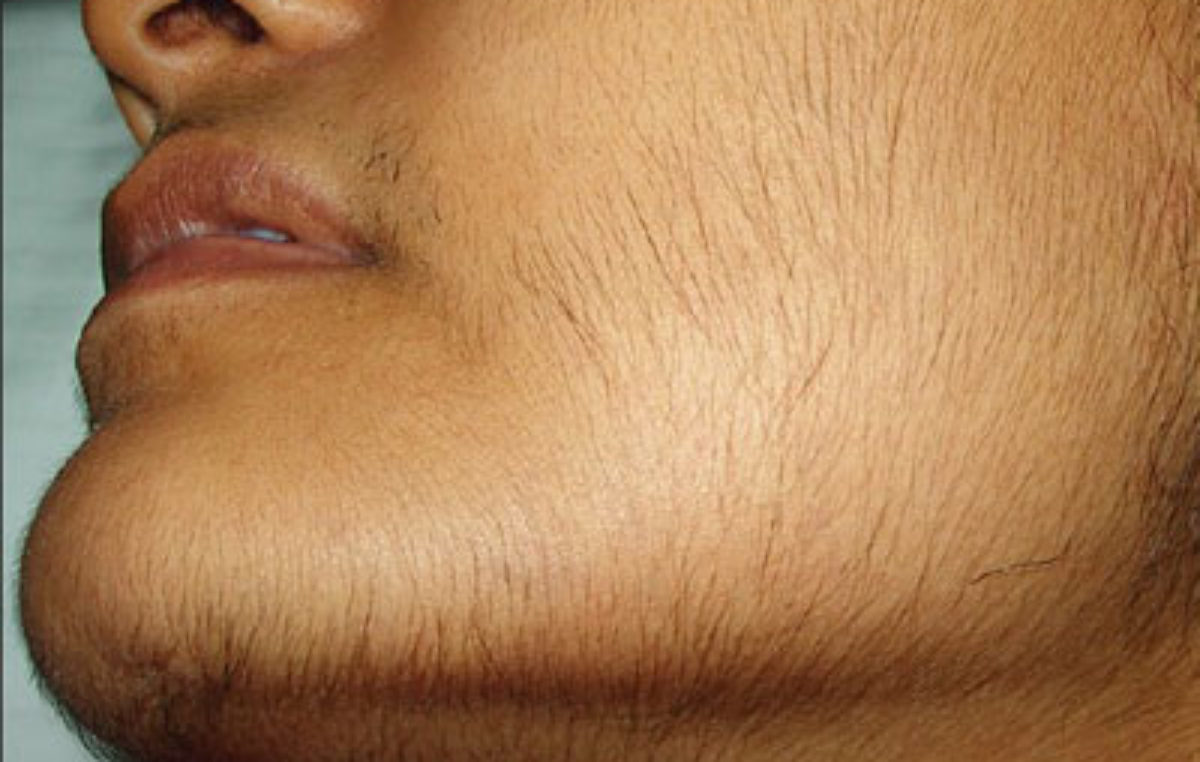 Indian Home Remedies For Hirsutism