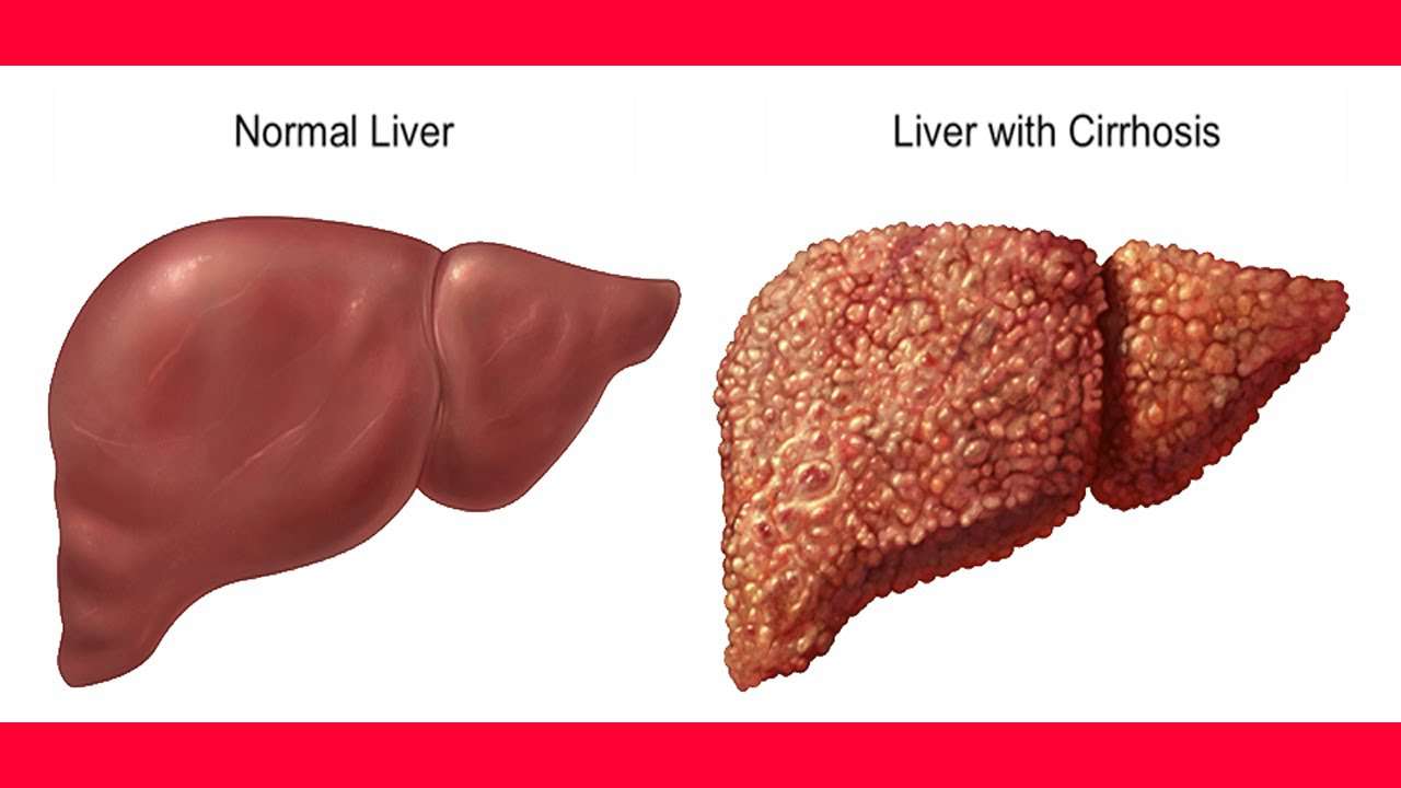 What Is The Life Expectancy Of Liver Cirrhosis Md Health
