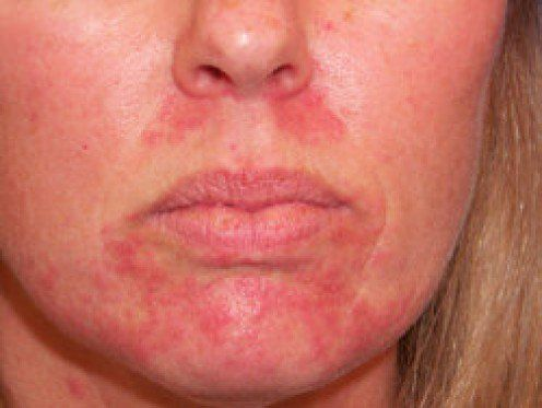 Scaly facial rash