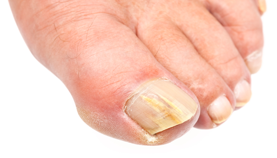 Why Are My Toenails Yellow? | MD-Health.com
