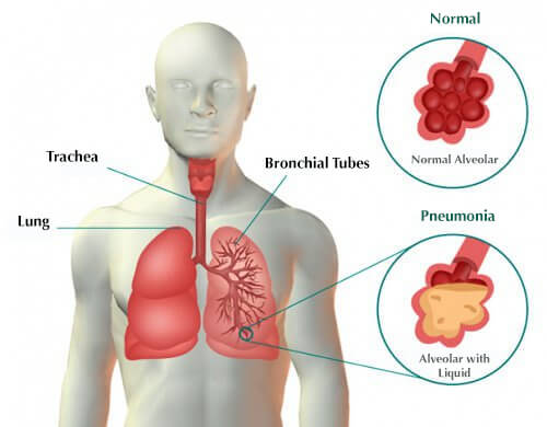Can Food In Lungs Cause Pneumonia