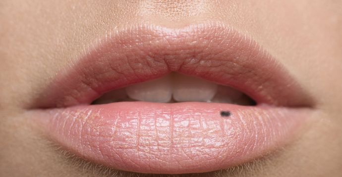 what causes black spot on your lips md. Black Bedroom Furniture Sets. Home Design Ideas