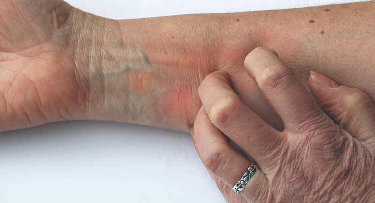 Can You Develop Shingles With No Rash Present Md Health Com