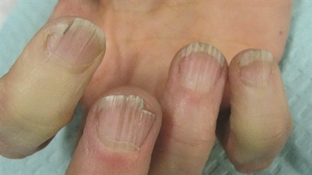Why You Have Fingernail Ridges And How To Deal With It