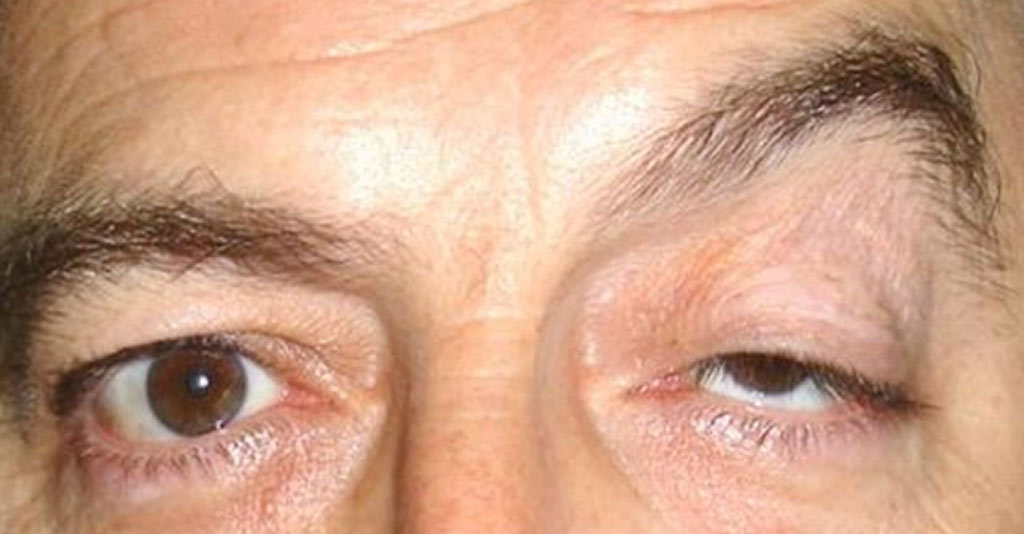 Ptosis: Cause, Symptom, and Treatment | MD-Health.com