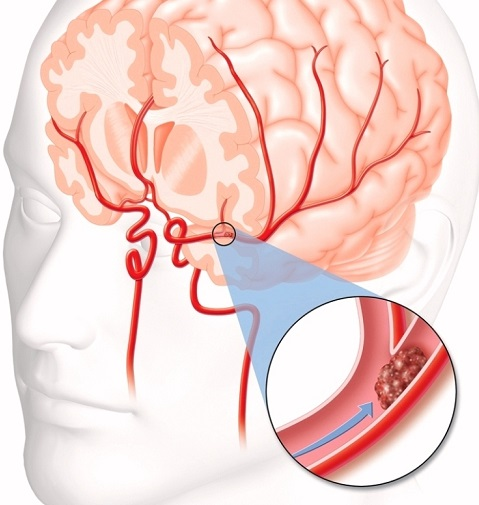 A Blood Clot In The Brain Can Cause An Ischemic Stroke Which Is Caused By Artery To Becoming Blocked And Starving Portion Of
